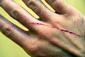 Болезнь кошачьих царапин – ищем источник заражения